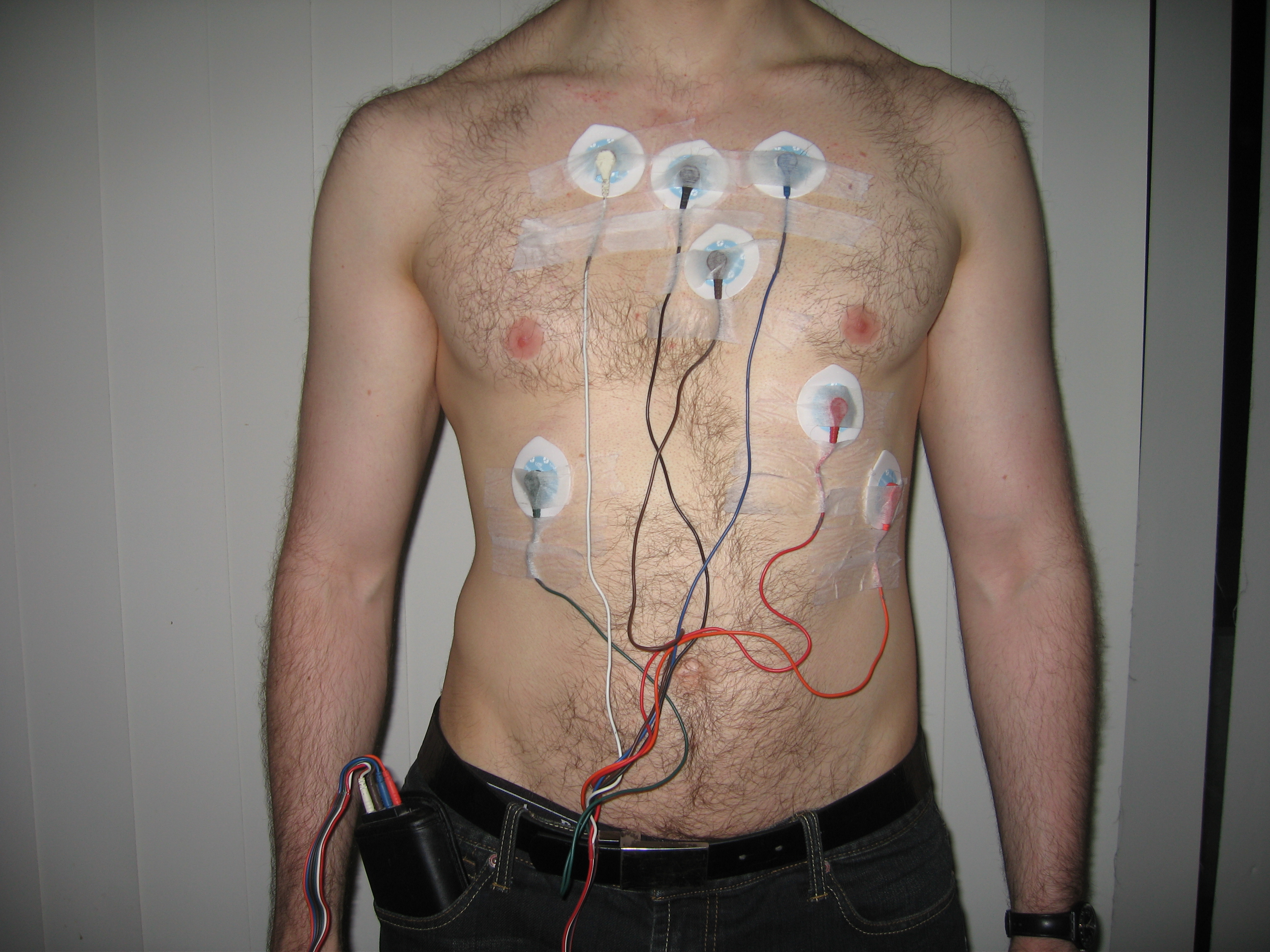 What does a holter monitor look like