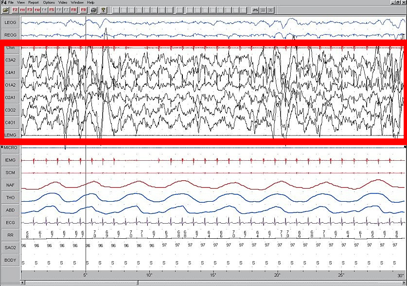 Sleep EEG Stage 4.jpg