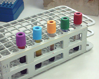 Vacutainers in a rack