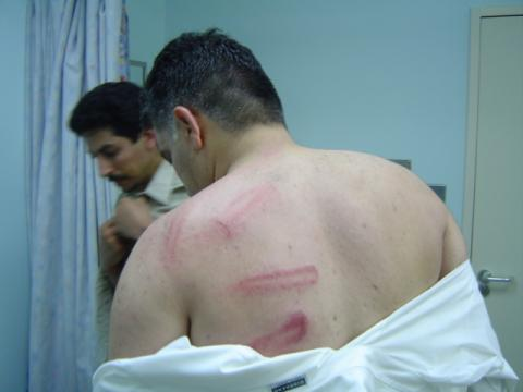 Beating marks on the back of Nabeel Rajab after police attacked a peaceful protest on 15 July 2005