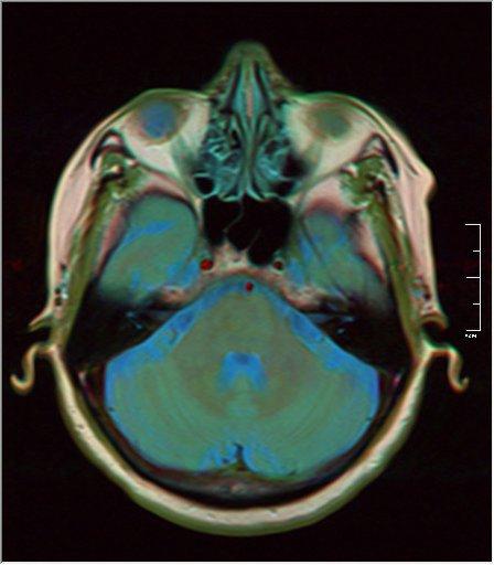 Brain MRI 0213 15.jpg