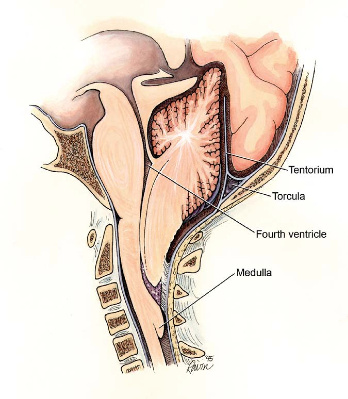 central-cord-syndrome-mri