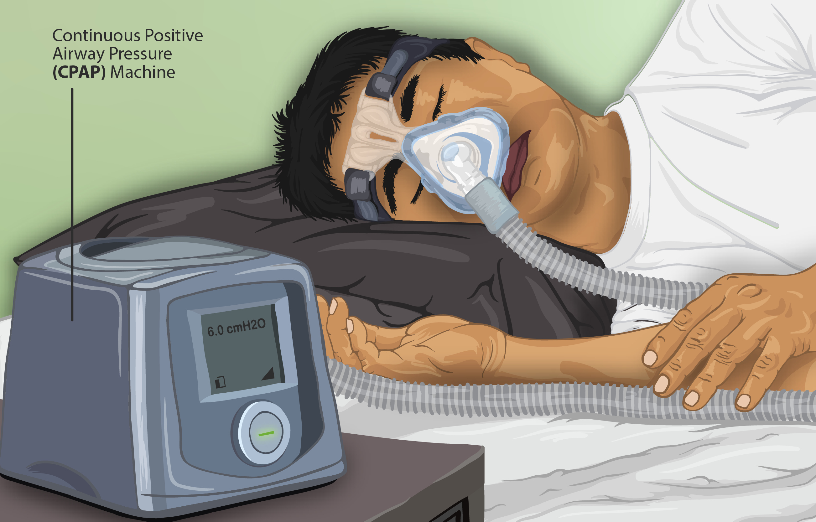 File:Depiction of a Sleep Apnea patient using a CPAP machine.png ...
