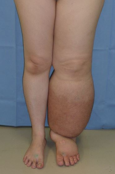Lower limb lymphedema