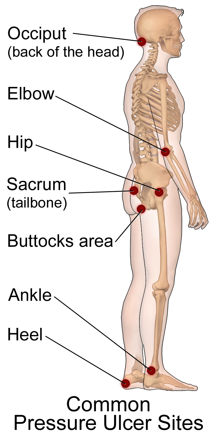 Icd 10 Coding Diseases Of The Skin And Subcutaneous Tissue Wikiversity