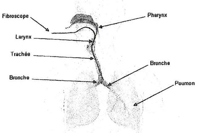 File:Schéma d'utilisation d'un fibroscope.jpg