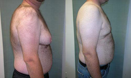Для девушек с маленькой грудью есть специальная статья как естественным путем.. очень маленькая грудь