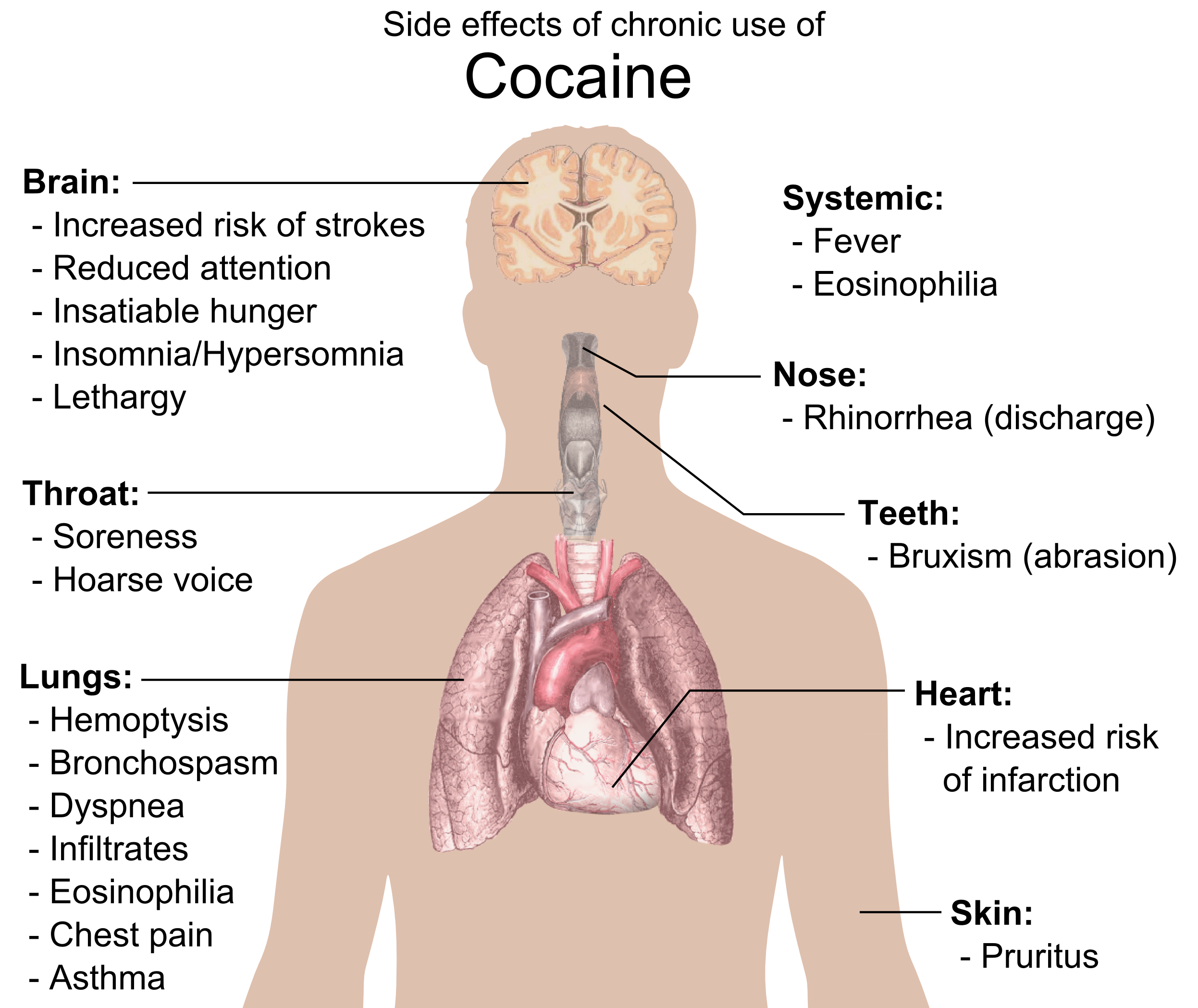 File:Side effects of chronic use of Cocaine.png