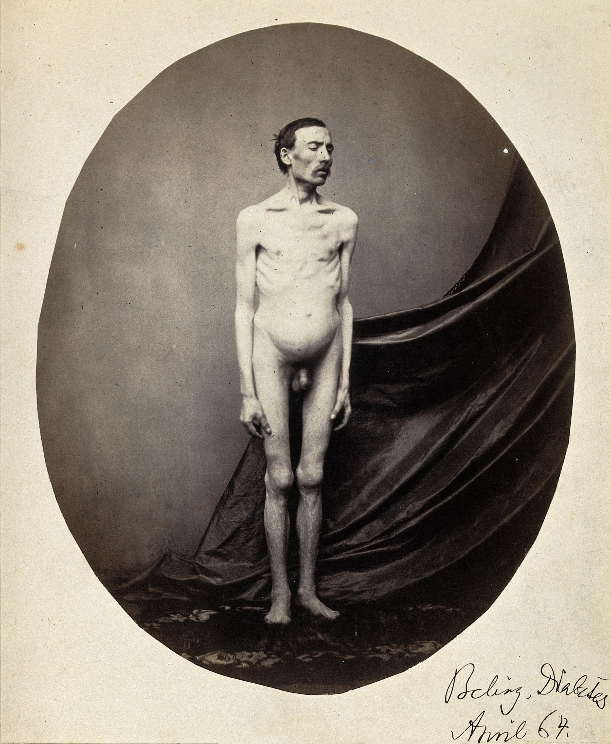 file:a naked man, standing; despite his emaciation, his abdomen i
