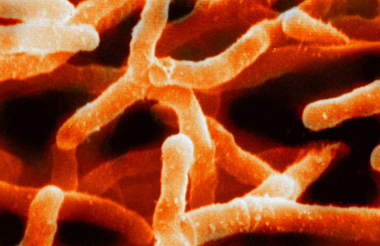 actinobacter baumannii Acinetobacter baumannii has emerged in the last decades as a major cause of healthcare-associated infections here's what you need to know to prevent these infections.