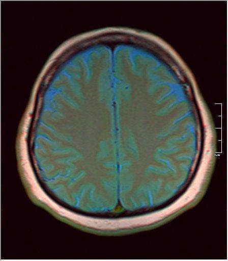 Brain MRI 0230 05.jpg