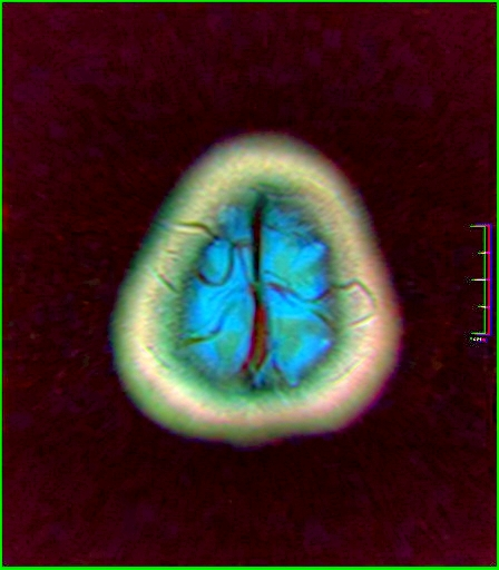 Color Brain MRI 0284 00.jpg