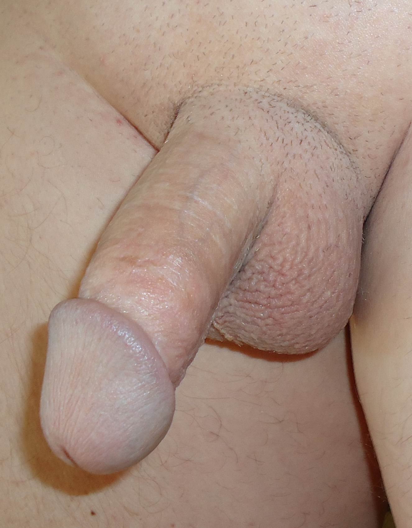Description Human penis shaved pubic.JPG