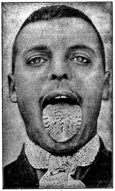 Langue scrotale Eugène S 20 ans 1906 nb.jpg