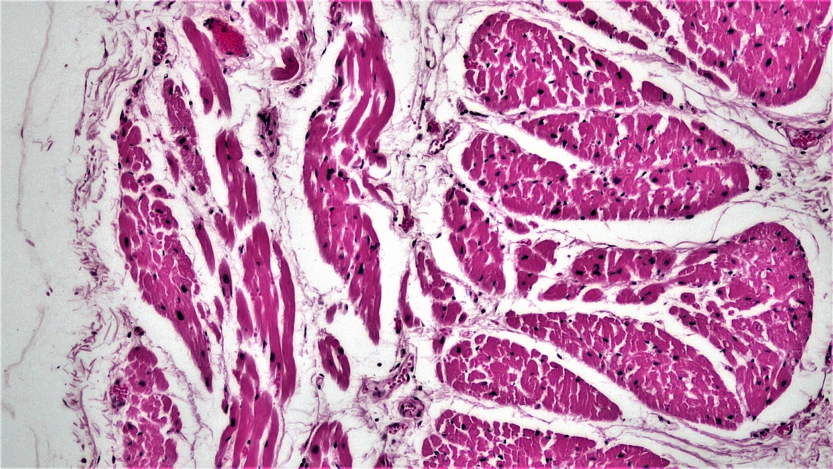 Filemuscle Tissue Cardiac Muscle 27187637147g Wikimedia Commons
