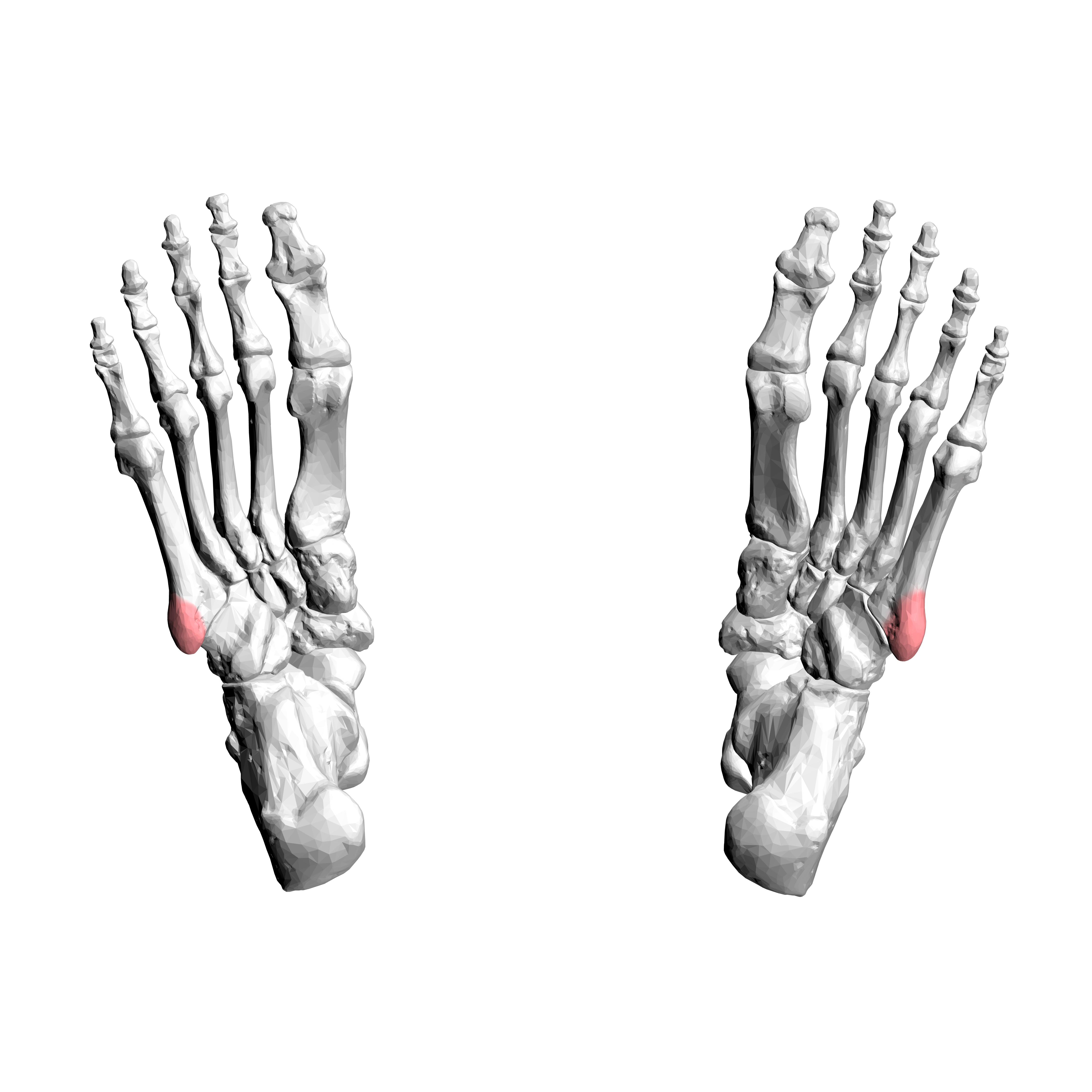 3 5 M To Feet File Tuberosity Of Fifth Metatarsal Bone 03 Inferior View