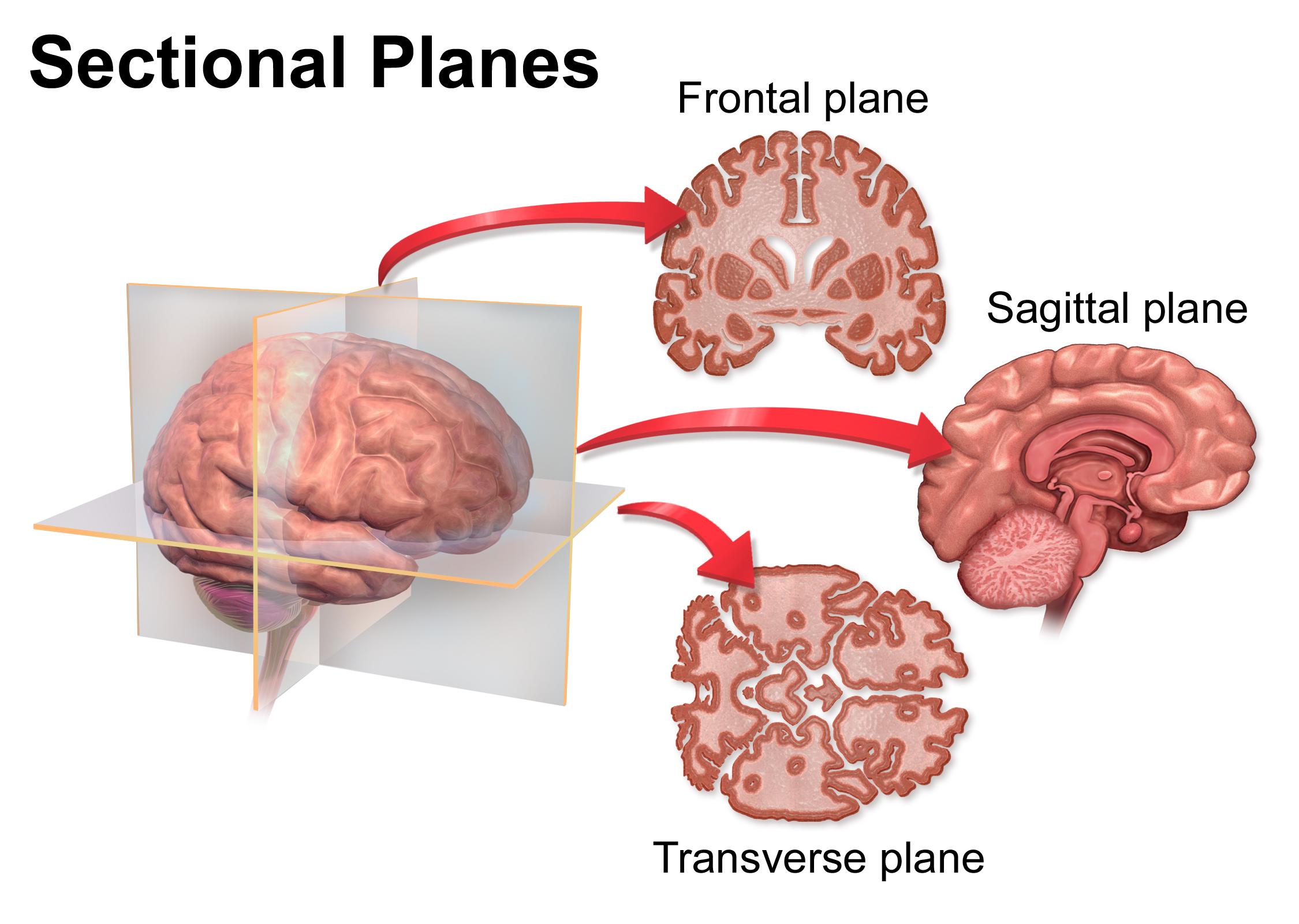 Coronal plane - Wikiwand