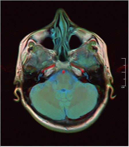 Brain MRI 0146 16.jpg