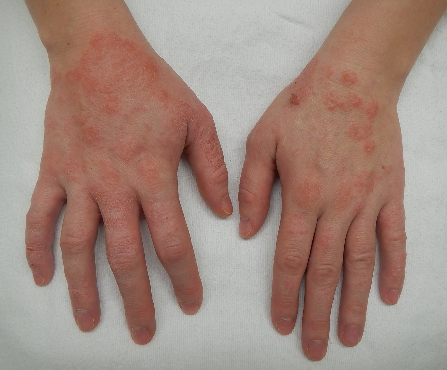Search Results - Autosensitization dermatitis - National ...