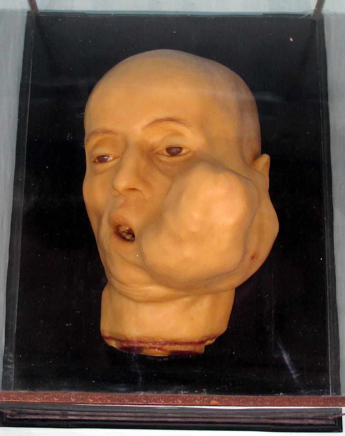 hipertrofia patologica yahoo dating