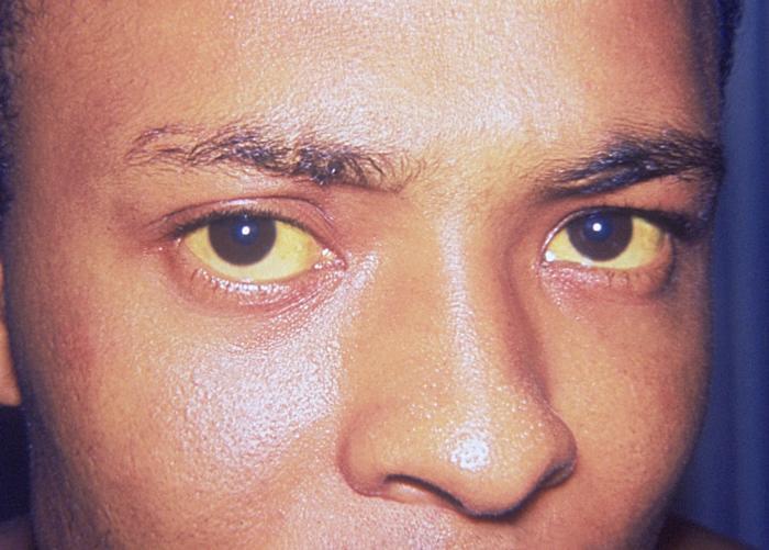 zažltnutie pokožky a očného beľma pri žltačke