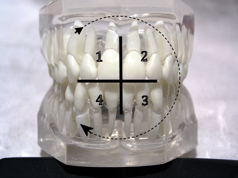 http://upload.wikimedia.org/wikipedia/commons/d/de/Teeth_model_front_FDI_Notation.jpg