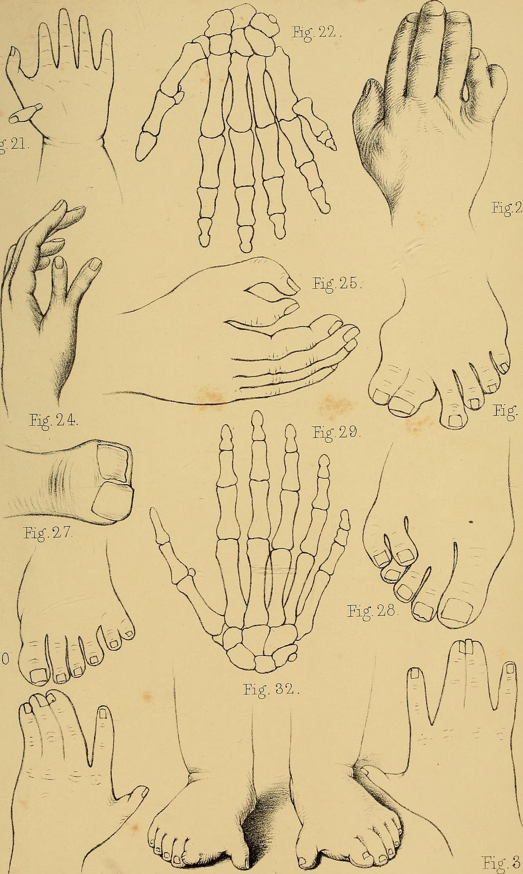 Nail Diseases | Fingernails | MedlinePlus