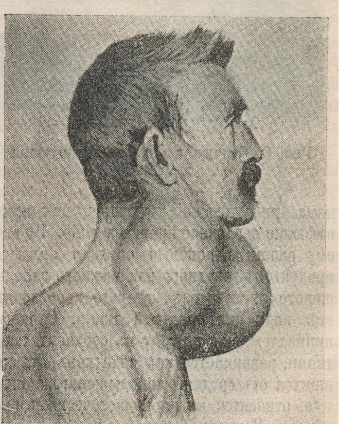 File Thyroid Cancer Jpg Wikimedia Commons