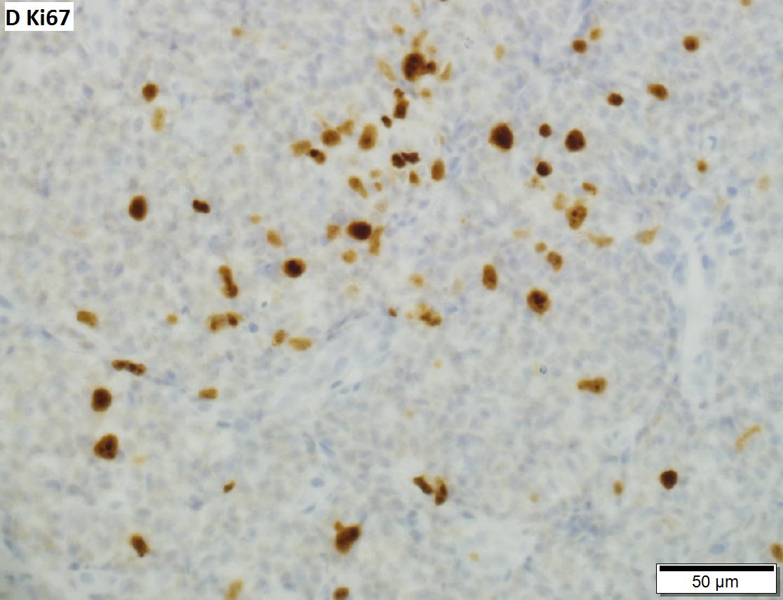 Malignant B cell lymphoma, NOS, in a 63 year old man's liver