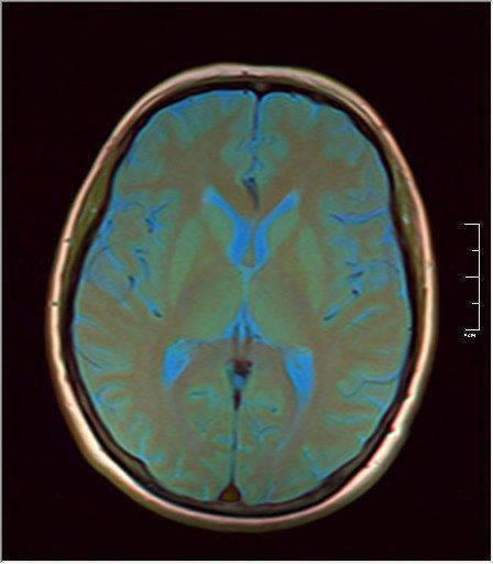 Brain MRI 0076 09.jpg