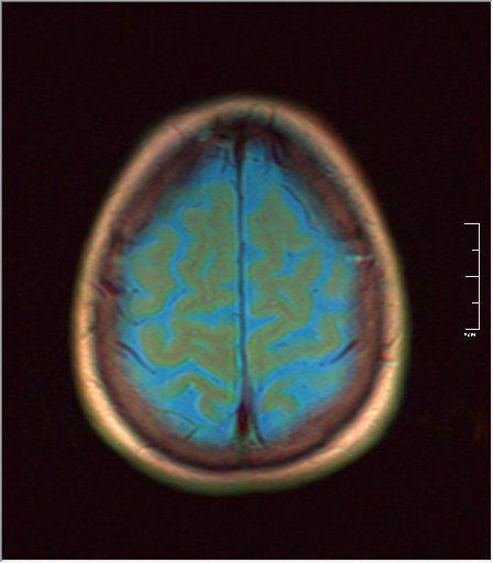 Brain MRI 0153 02.jpg