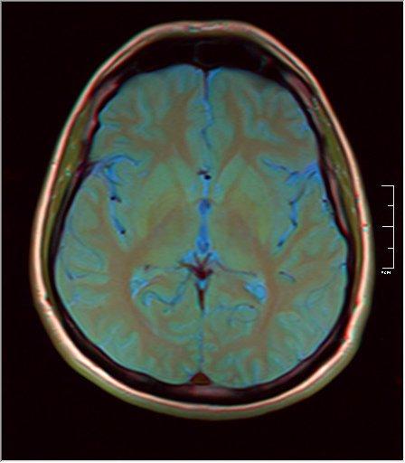 Brain MRI 0249 09.jpg