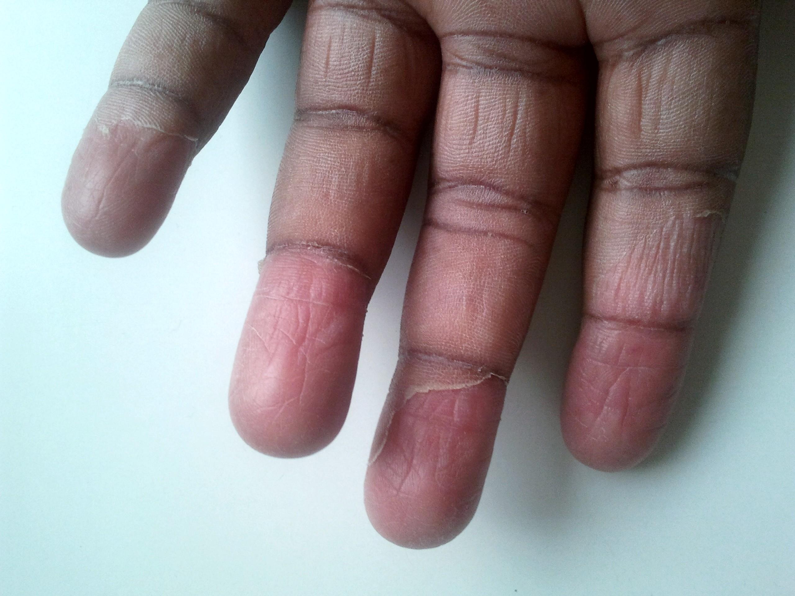 File:Desquamation en doigt de gant - scarlatine j12.jpg - Wikimedia ...