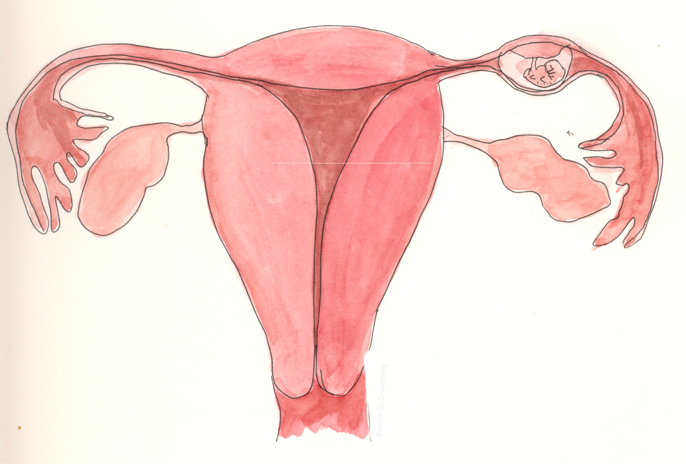 Fileectopic Pregnancy In Fallopian Tubeg Wikimedia Commons