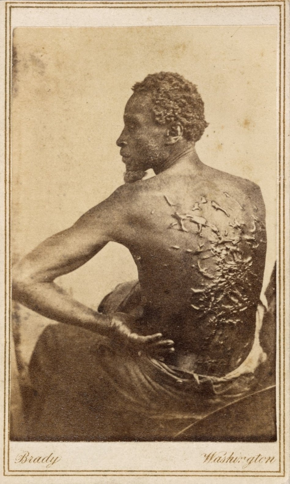 CdV Of Gordon Slave Reproduced By Mathew Brady