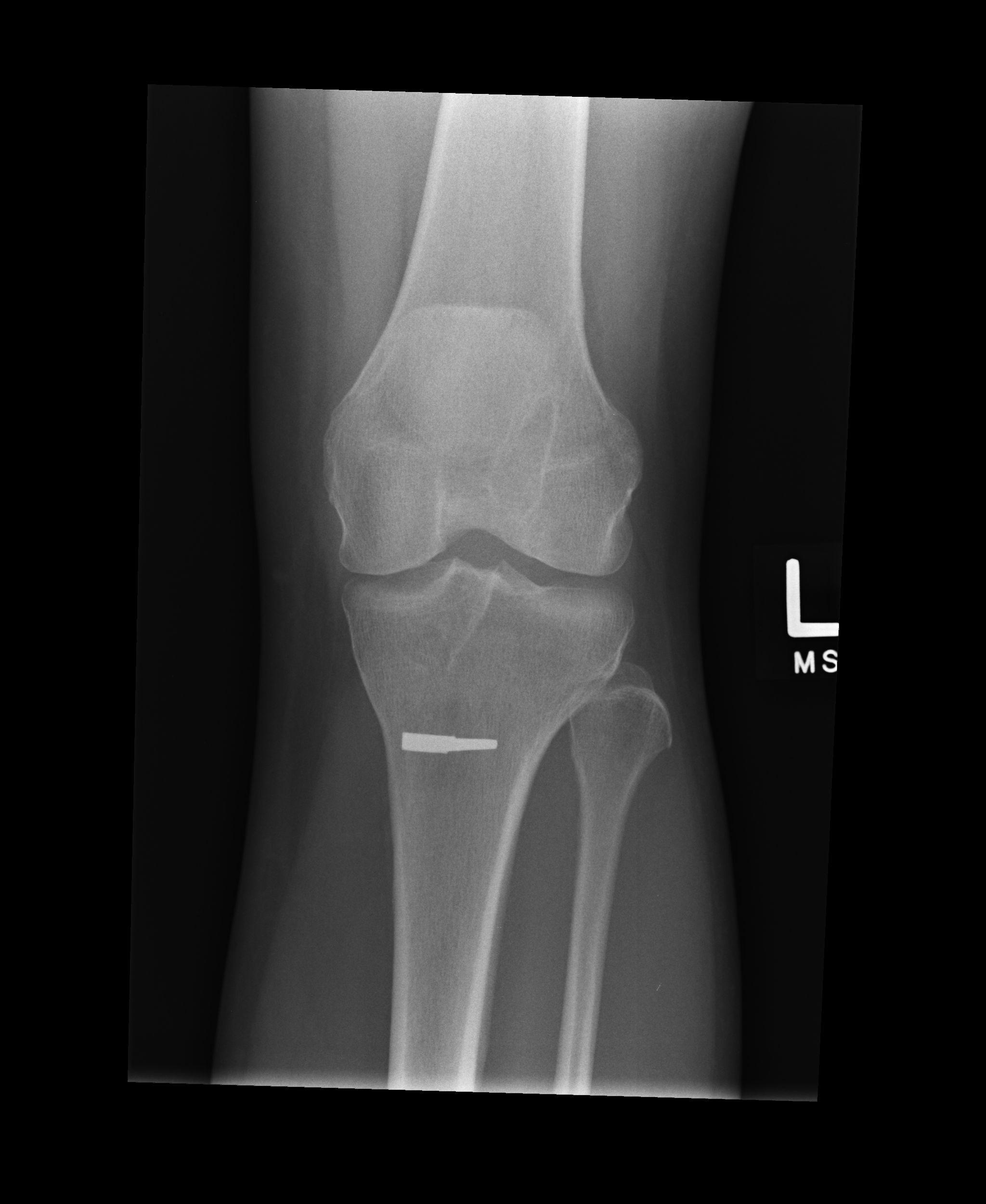 File:Left knee xray (5585922859).jpg - Wikimedia Commons