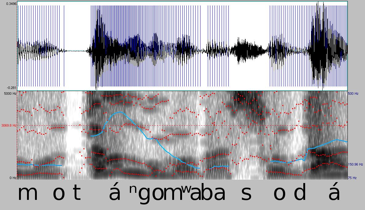 Menschliche Stimme – Wikipedia