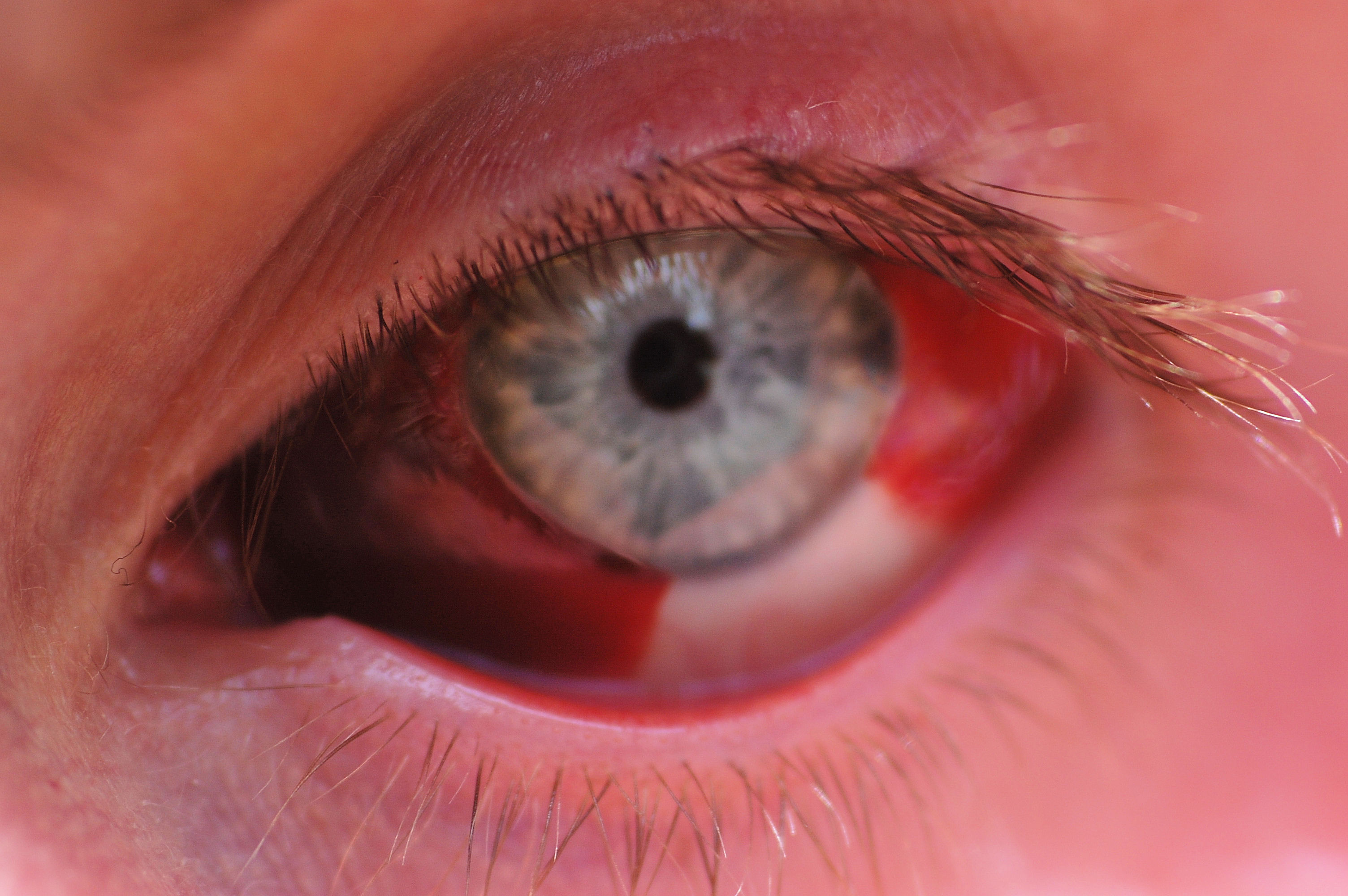 Corneal Abrasion Topic Guide - eMedicineHealth