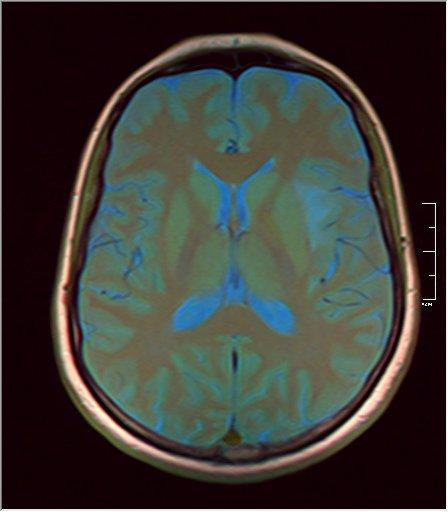 Brain MRI glioma 08.jpg