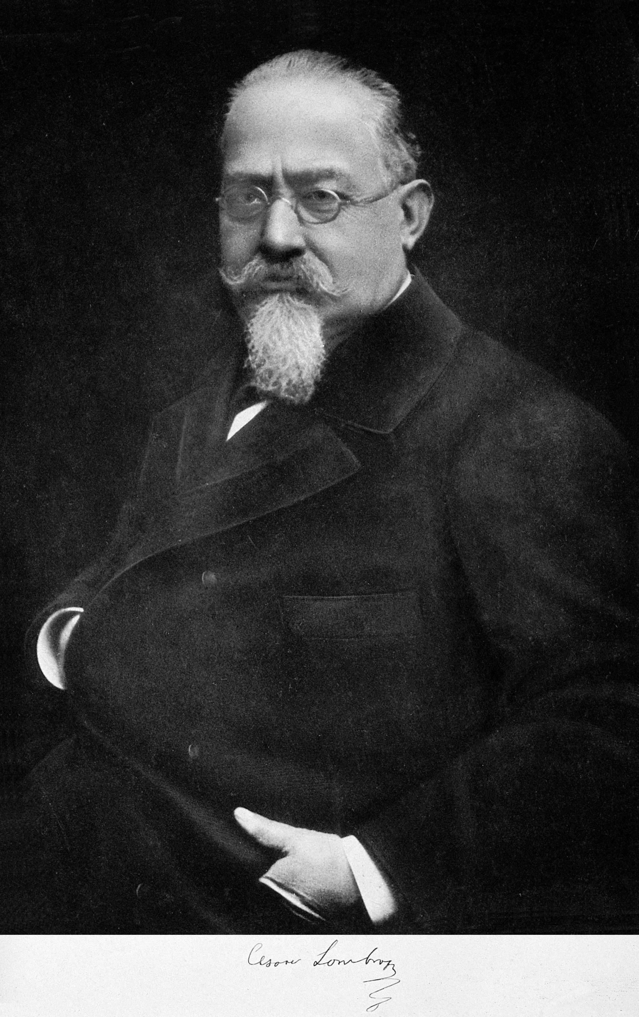cesare lombroso Lombroso definition, cesare [che-zah-re] /ˈtʃɛ zɑˌrɛ/ (show ipa), 1836–1909, italian physician and criminologist see more.
