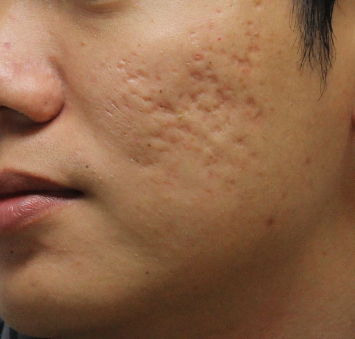 File:Deep-scars-1.jpg