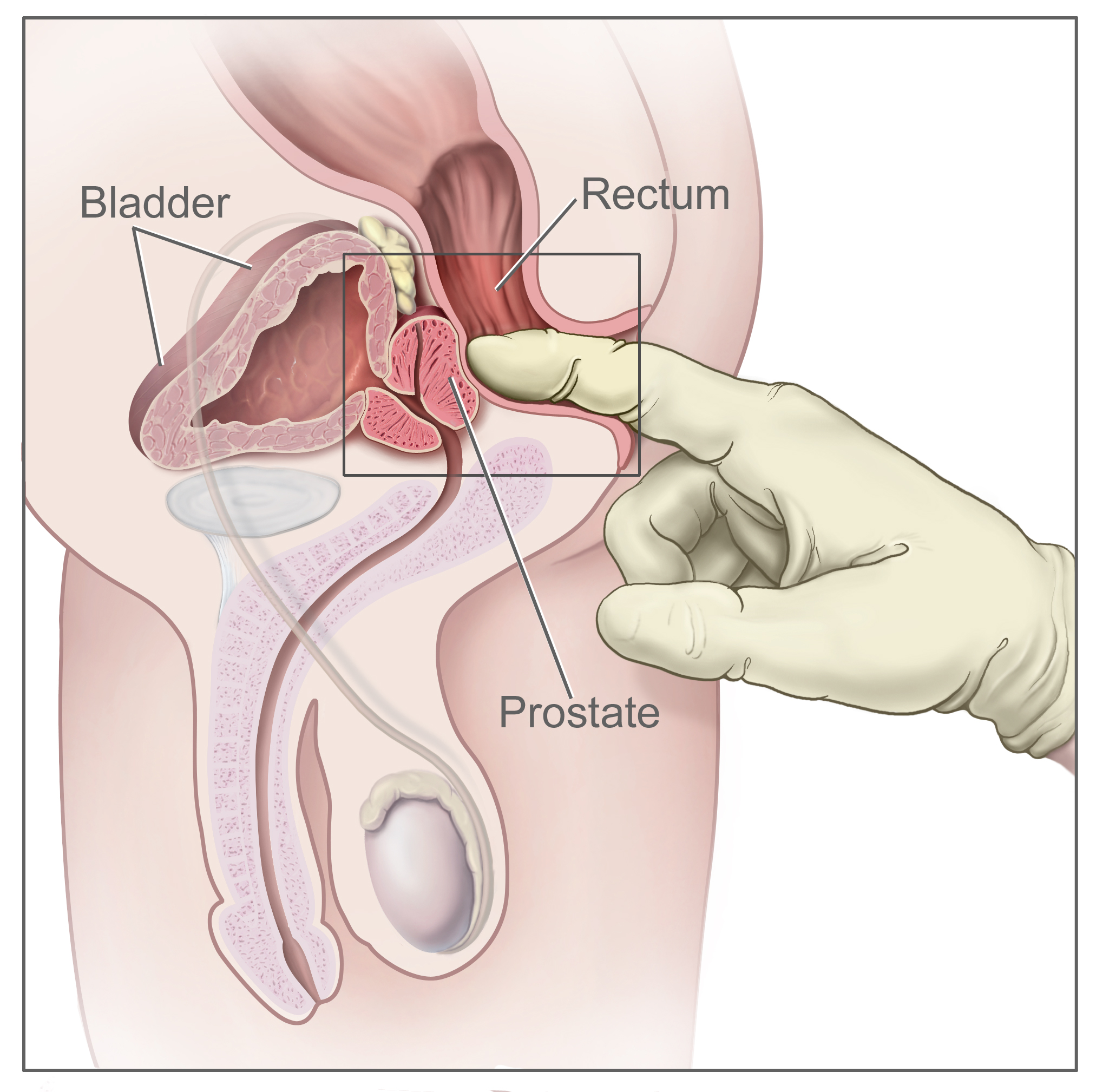 Rectal examination - Wikipedia
