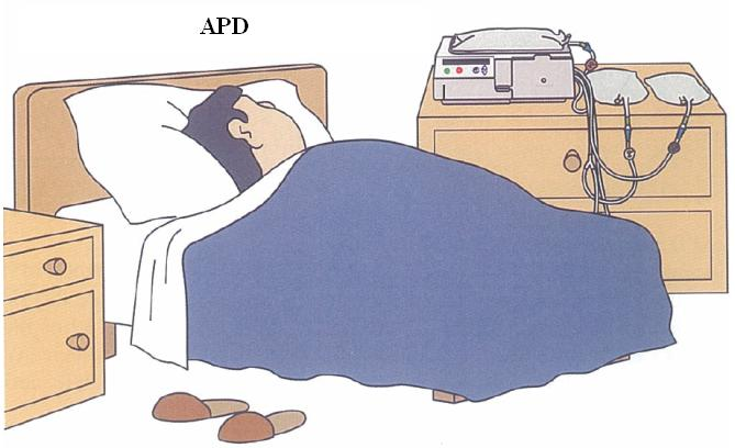 File:Illustration of APD dialysis.jpg - Wikipedia, the free ...