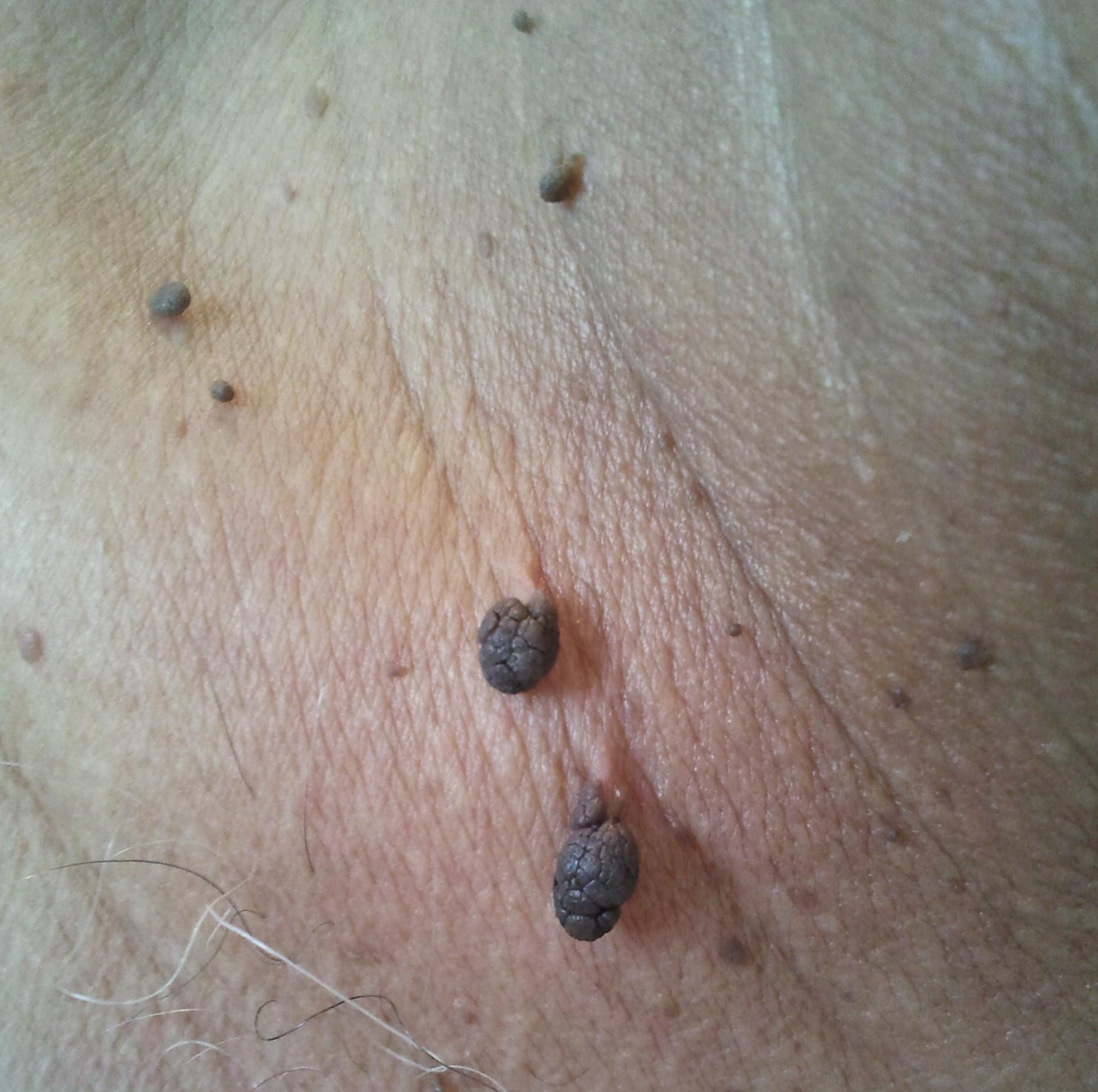 removing a skin tag