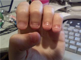 File Nail Biting Also Known As Onychophagy Or