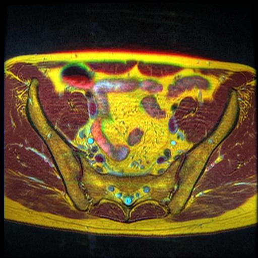 Pelvic MRI T1FSE T2frFSE T2FSfrFSE 01.jpg