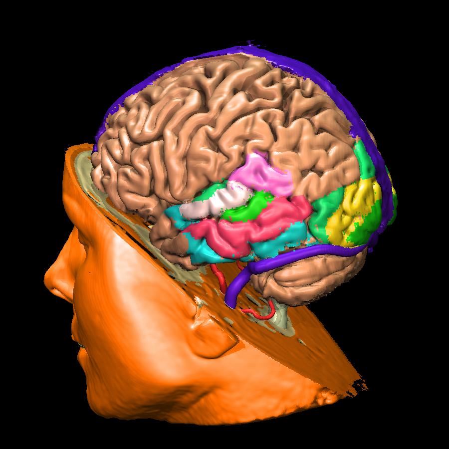 Voxel-man-brain.jpg