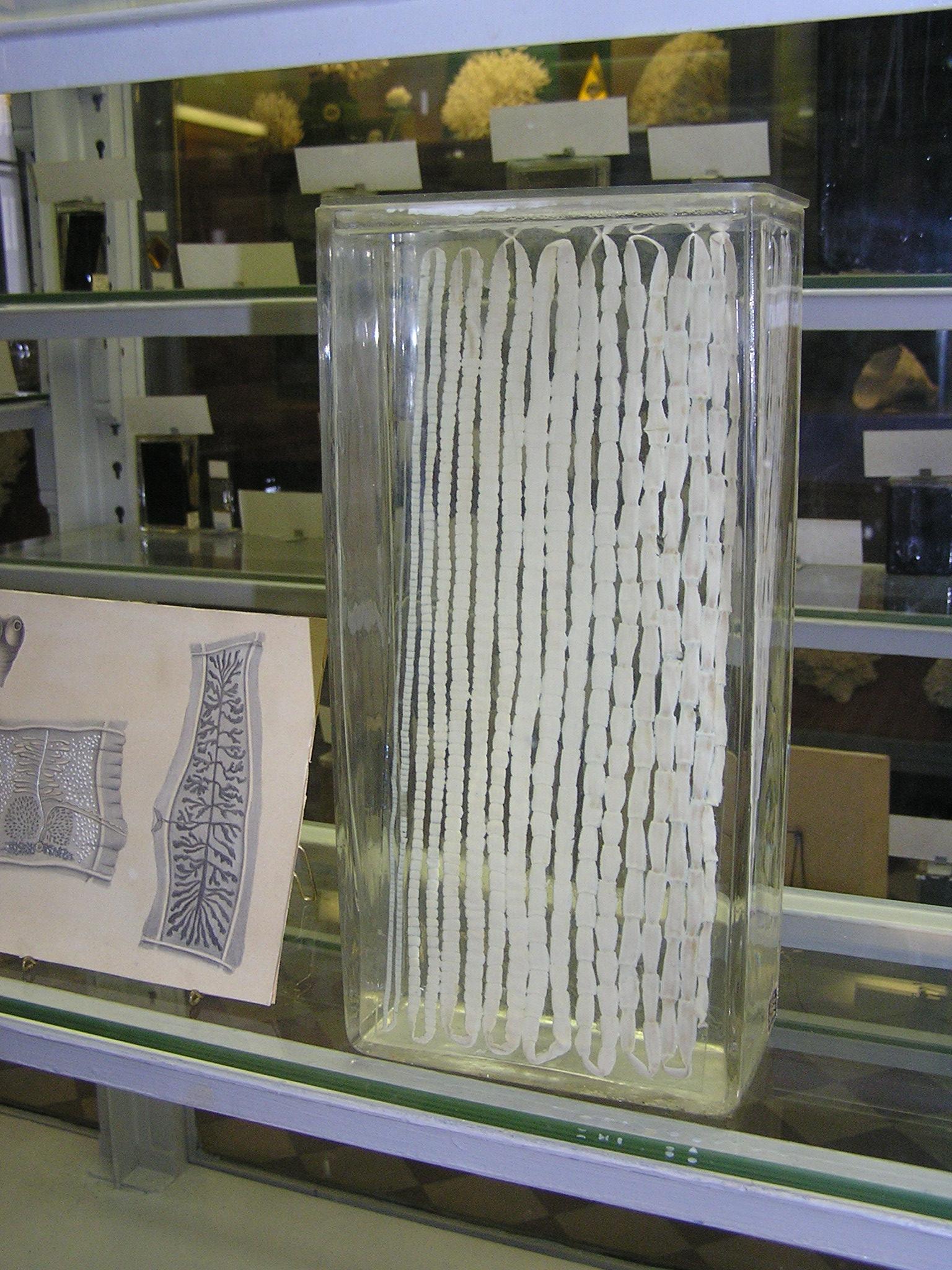 Свиной солитер (Taenia solium) в коллекции Зоологического музея ЗИН РАН.