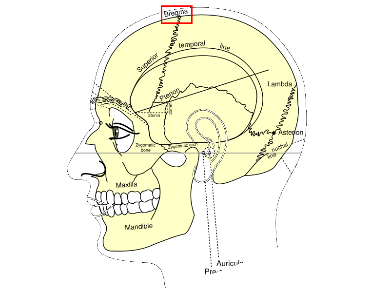 at least for a short time, if the superior sagittal sinus is torn.