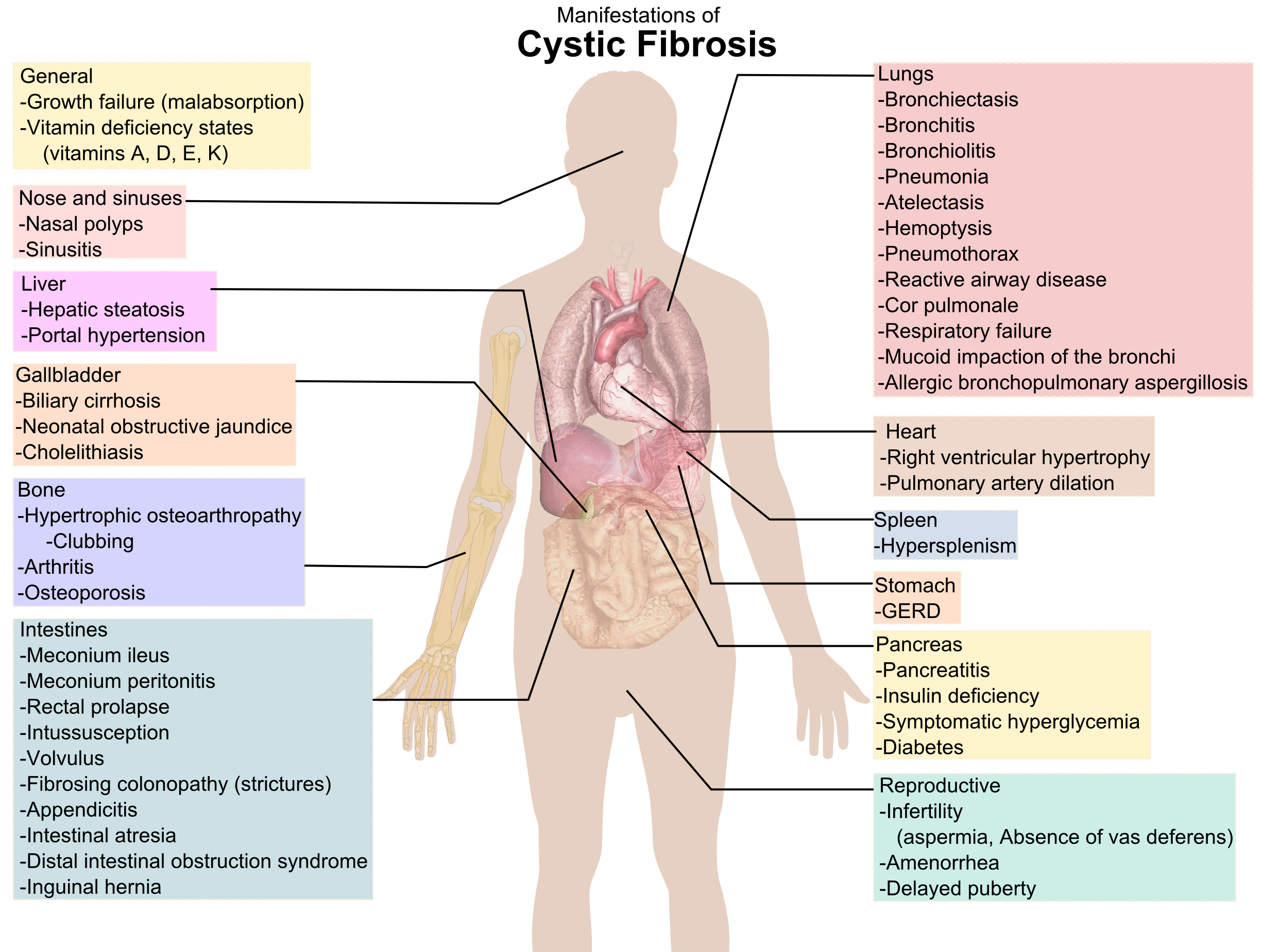 Filecystic Fibrosis Manifestations Wikimedia Commons This Diagram Shows The Muscles In Heart